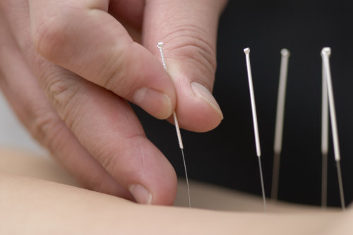 Traditional Chinese Medicine Acupuncture Scotland