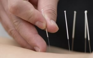 chineseMedicineAcupuncture-400x250